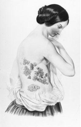 Dizionarietto etimologico salentino sulle malattie e stati parafisiologici della pelle, con alcune indicazioni terapeutiche presso il popolo di Nardò (1/3: BRUSCATURA-FUECU TI SANT'ANTONI)*