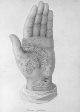Dizionarietto etimologico salentino sulle malattie e stati parafisiologici della pelle, con alcune indicazioni terapeutiche presso il popolo di Nardò (3/3: OCCA ARDUTA-UECCHIU TI PESCE)